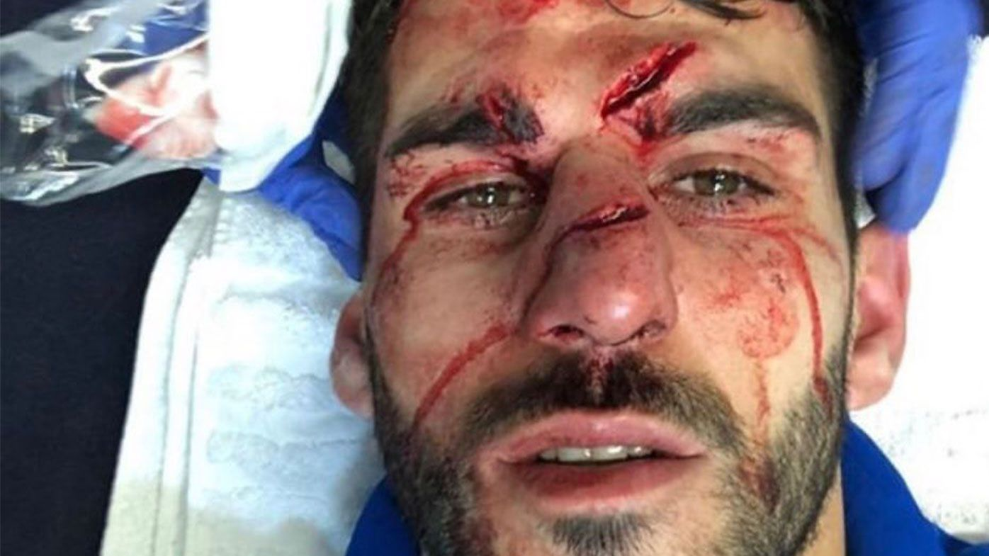 Nelson Oliveira left with gruesome facial injuries after opponent stomps on his face