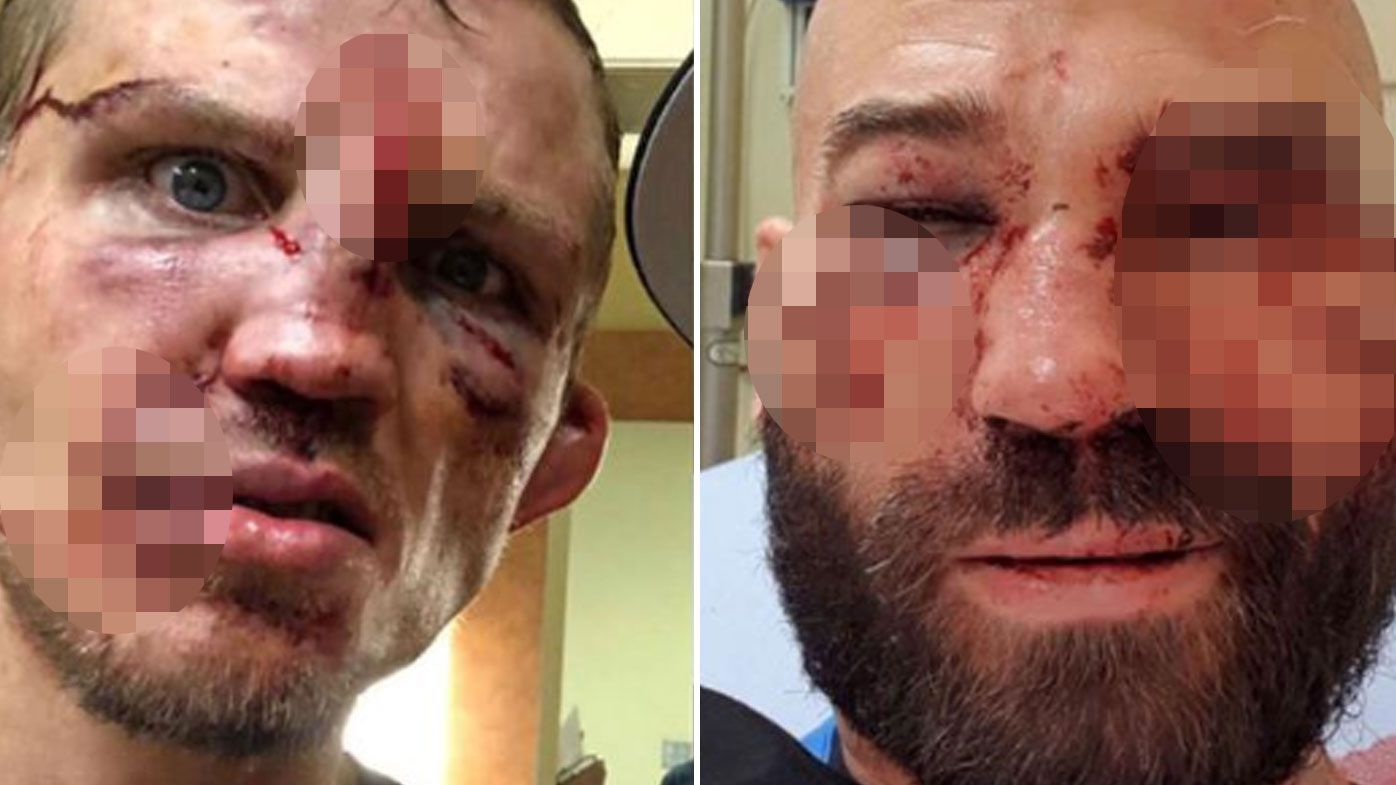 Bare Knuckle FC fight between Artem Lobov and Jason Knight shocks in bloody aftermath