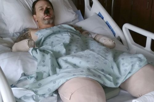 Greg Manteufel, 48, from Wisconsin has undergone at least 10 surgeries during which medics amputated parts of each of his limbs because circulation to his extremities shut down due to the infection from dog saliva.