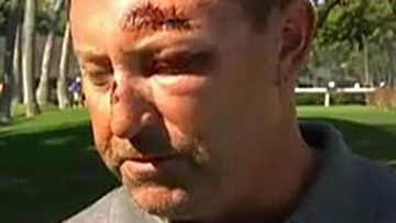 Robert Allenby after he was bashed in Hawaii.
