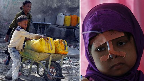 Poor water supplies are putting the lives of millions of people in Yemen at peril. (Photos: AP).