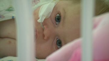 Mum's warning as baby faces losing fingers, toes to Meningococcal