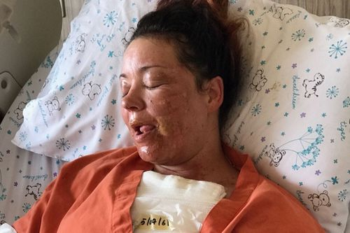 Victoria Nikoloudis is in a Thai hospital with serious burns.