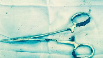 The rusted scissors after they were removed from Ma Van Nha's stomach.