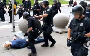 Elderly US protester shoved by police suffered fractured skull