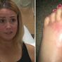 Woman contracts flesh eating bacteria without even going in the water
