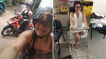 Student has leg amputated after Thailand scooter crash
