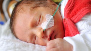 An Australian hospital is touting a new trial aimed at treating premature babies with lung problems using placenta cells a success. Picture: iStock Photo