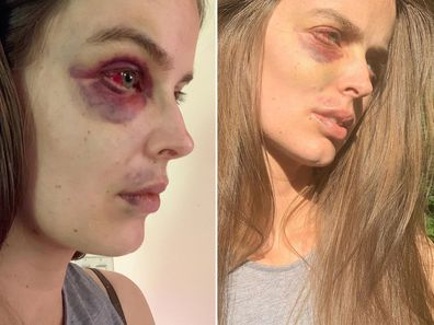Australian model Robyn Lawley pictured following a recent seizure