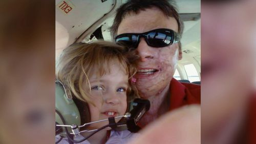 The pilot's daughter Hannah was born six months after the 2005 crash which left him badly scarred. (9NEWS)
