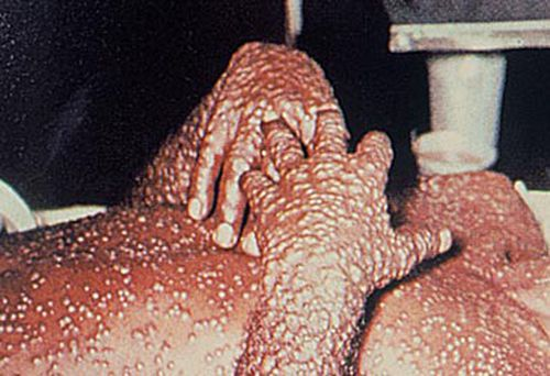 Man infected with smallpox (Getty)