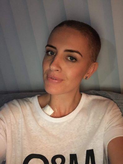 Natalie NBCF no hair