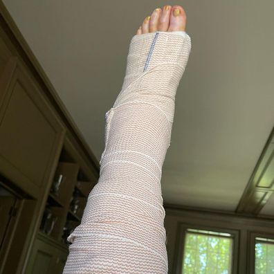 Martha Stewart shared a photo of her foot wrapped in bandages.