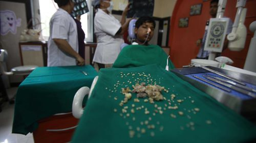 Mouthful: Teen has record 232 teeth extracted from his mouth
