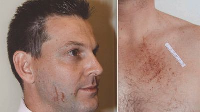<p>April 20, 2012: Police respond to Baden-Clay's missing persons report and arrive at the family's Brookfield home to find deep cuts on Gerard's face, which he claims are from shaving. </p> <p>Photographs of his injures are later tendered as evidence.</p>