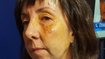 Nurse punched and eyes 'pulled at' in random attack
