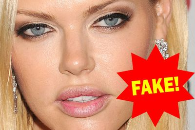 "Freaky-faced Aussie star Sophie Monk says she regrets having her lips plumped after getting a cyst removed from her bottom lip. ""I should have said no to the filler in the first place but I trusted the doctor."""