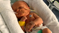 New campaign to fund ventilators for babies