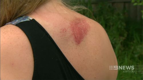 Ms Kinna suffered bruising and injuries on her back. (9 NEWS)