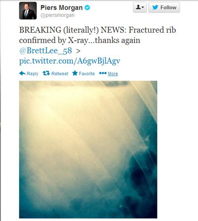Piers Morgan tweeted this pic of his broken rib