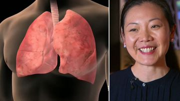 Why women are being urged to be more aware of lung cancer