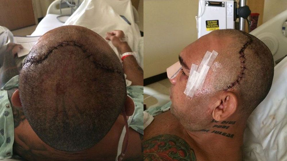 Evangelista Santos before his surgery, left, to fix his cracked skull and after (MMA Fighting)