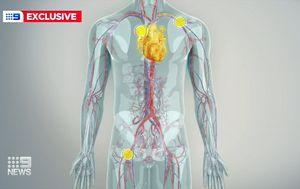 Thousands more Australians now eligible for heart valve disease keyhole surgery