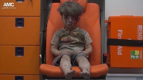 Older brother of Syrian boy dies of injuries