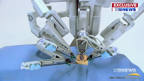 Robotic tentacles are controlled by the surgeon to allow safer and more precise surgery for cancer patients.