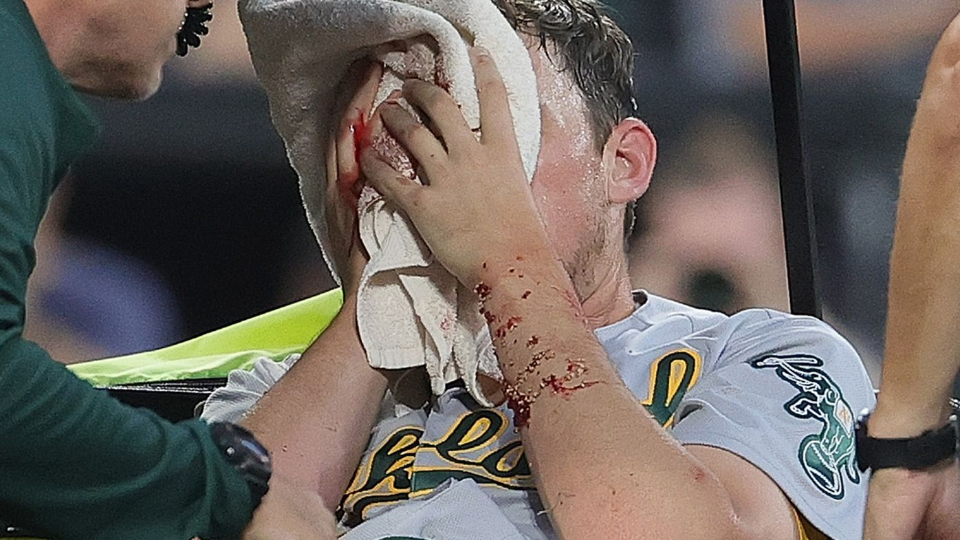 Chris Bassitt of the Oakland Athletics leaves the field after he was hit in the face by a line drive off the bat of Brian Goodwin of the Chicago White Sox.