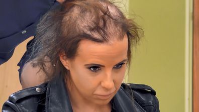 Hayley reveals her significant hair loss.
