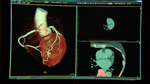 The 15-minute test could rule out if a person is having a heart attack.