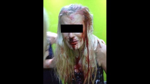 Accused Schoolies mug basher has charges dropped