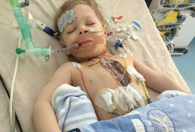Lucas was in surgery for much his first two years.