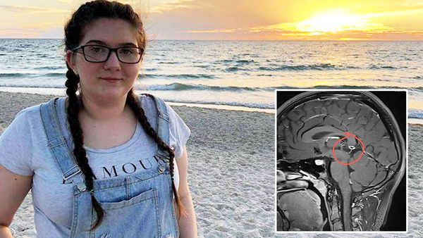 South Australian teen Amelia Hocking needs lifesaving surgery to remove a cyst from her brain. (Supplied)