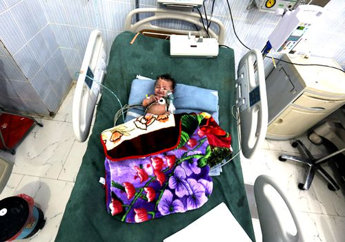 A Yemeni malnourished child receives medical treatment amid increasing threats of health collapse in war-torn Yemen in January, 2018 in Sana'a, Yemen. (Getty)