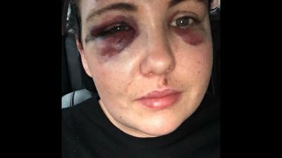 Mother shares photos of daughter's injuries in hunt for her attacker
