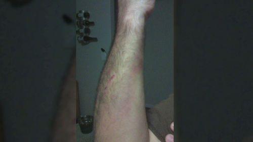Mr Wood said he was injured defending himself.