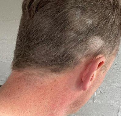 Ben Fordham haircut disaster in lockdown