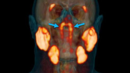 Newly discovered human organ may help reduce side effects of cancer treatment