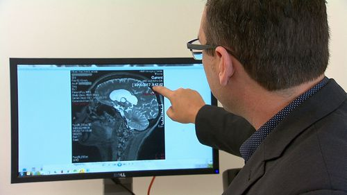 Newcastle researchers have shown that a synthetic form of human growth hormones helped mice repair their cognitive function after a stroke. Picture: 9NEWS