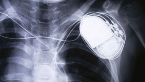The new iPhone 12 has been shown to interfere with pacemakers and defibrillators.