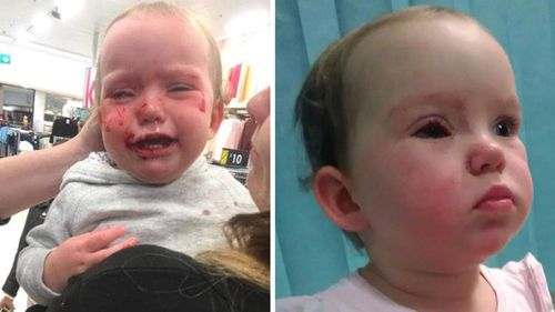 Hayley Skye Smith's daughter Amaia also injured her eye on the metal prong of a clothes rack.