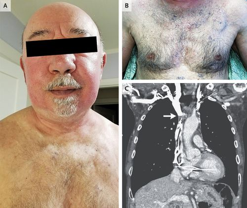 The man, aged 75, went to a dermatology clinic with erythema of the face, which doctors later found was linked to his pacemaker.