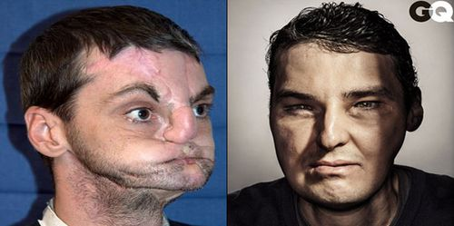 Richard Norris has made the cover of GQ after receiving a face transplant.