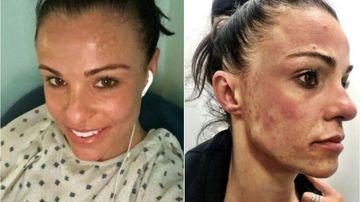 Carly Buhagiar treated for mould illness