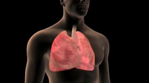 Lung cancer is Australia's worst cancer killer. (9NEWS)