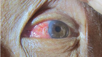The surfer's eye three days after he stuck his head in the water to remove excess tissue from his eye though he did suffer mild inflammation as a result. (BMJ Case Reports)
