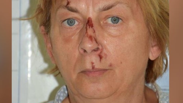 Local Crotation police said the woman, believed to be in her 60s, was found on the island of Krk.