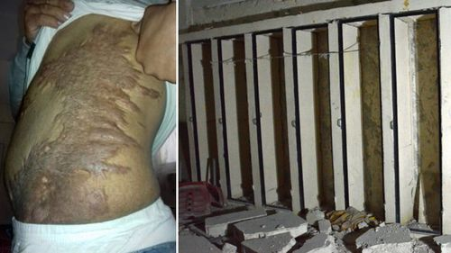 """A prisoner shows scars from ISIS torture (left); solitary confinement cells, nicknamed """"coffins"""", where prisoners are confined standing up, in an Islamic State  prison in the Syrian town of al-Bab (right). Source: (International Centre for the Study of Violent Extremism / AFP)"""